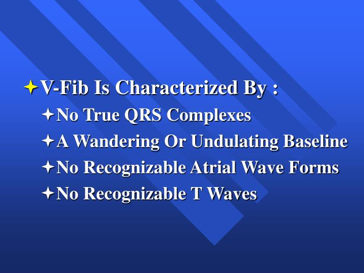 V-Fib Is Characterized By :