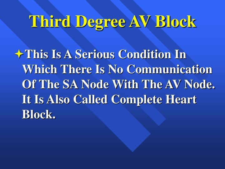 Third Degree AV Block
