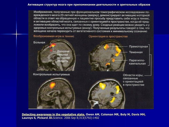 Активация структур мозга при припоминании деятельности и зрительных образов