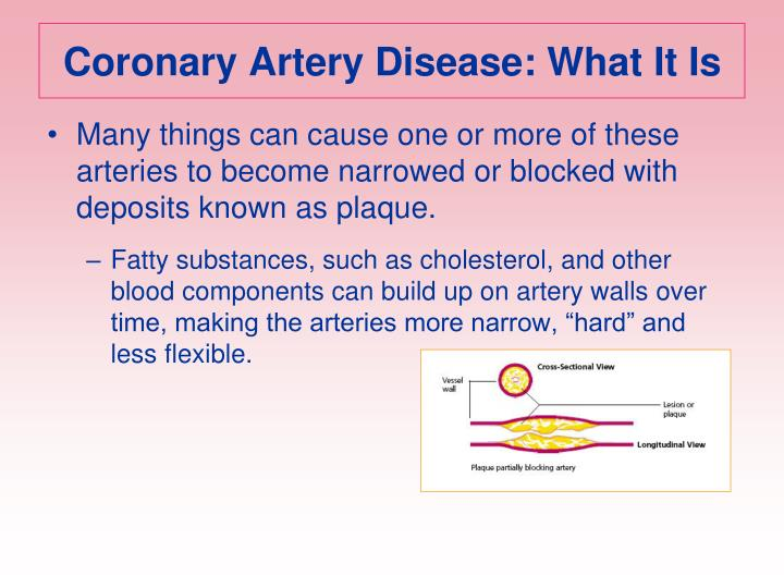 Coronary Artery Disease: What It Is