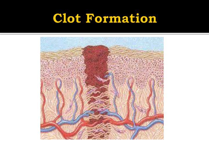 Clot Formation