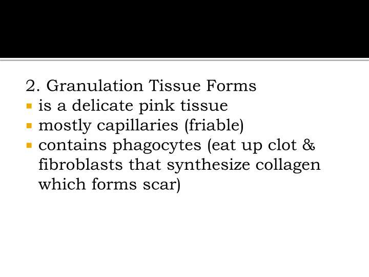 2. Granulation Tissue Forms