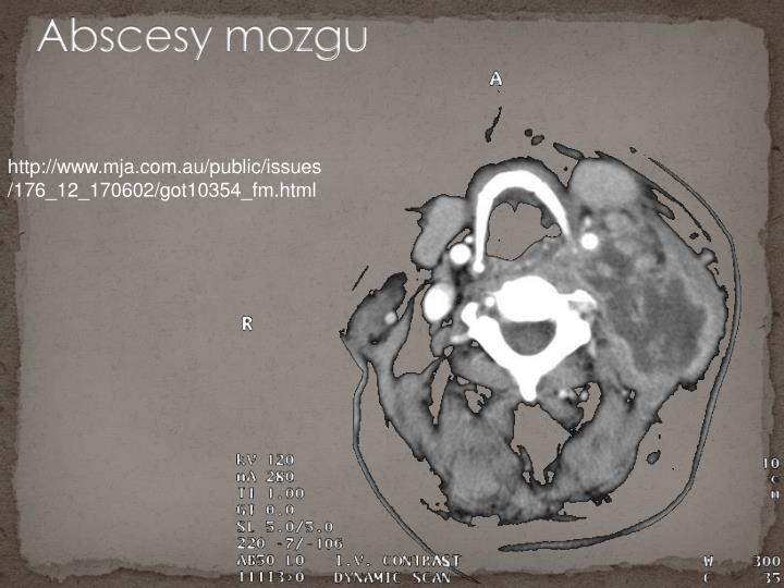 Abscesy mozgu