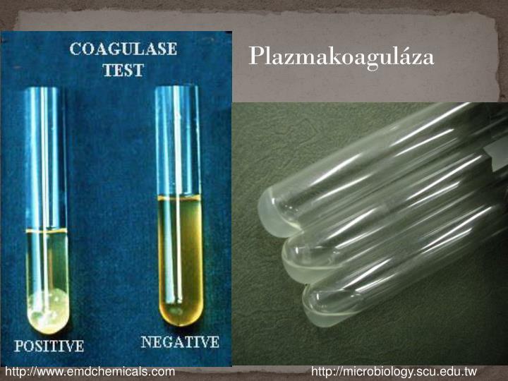 Plazmakoaguláza