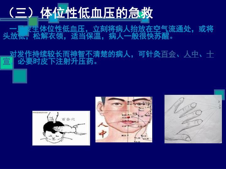 (三)体位性低血压的急救