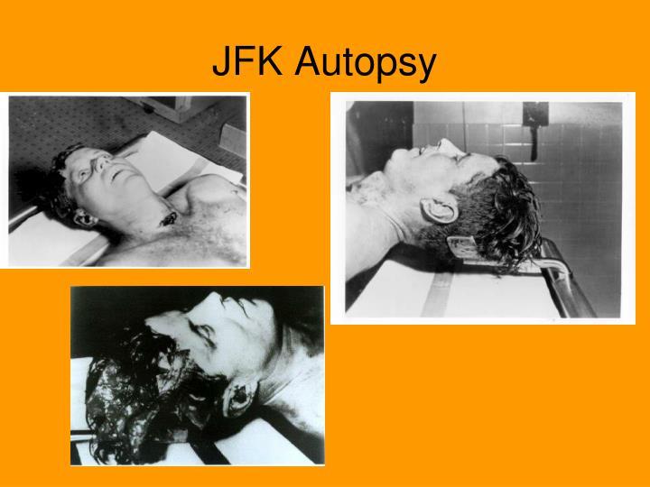 JFK Autopsy