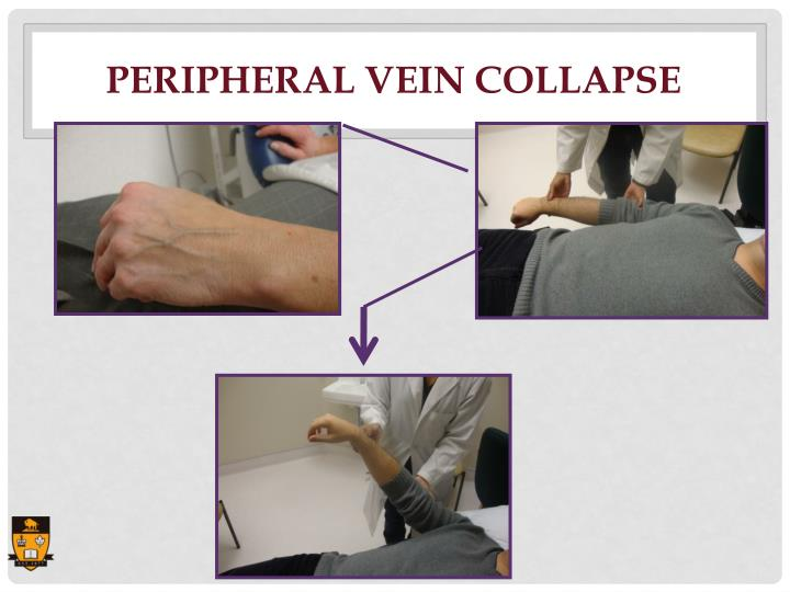 Peripheral Vein Collapse