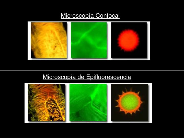 Microscopía Confocal