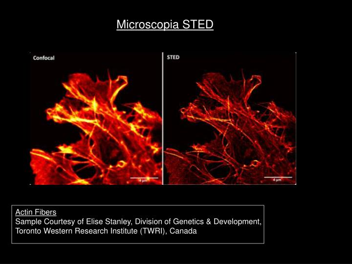 Microscopia STED