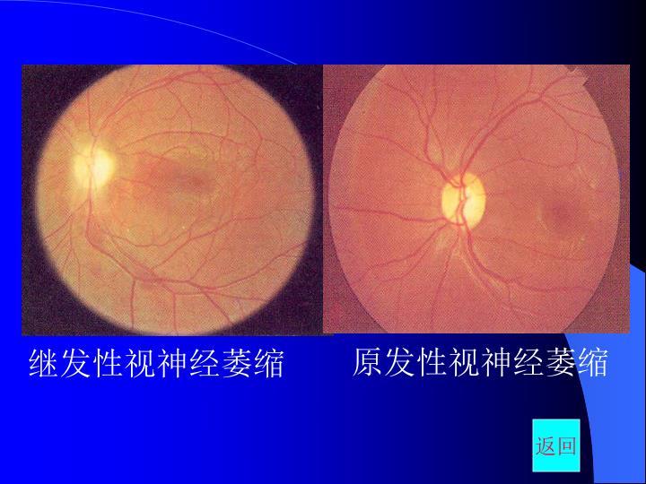 原发性视神经萎缩