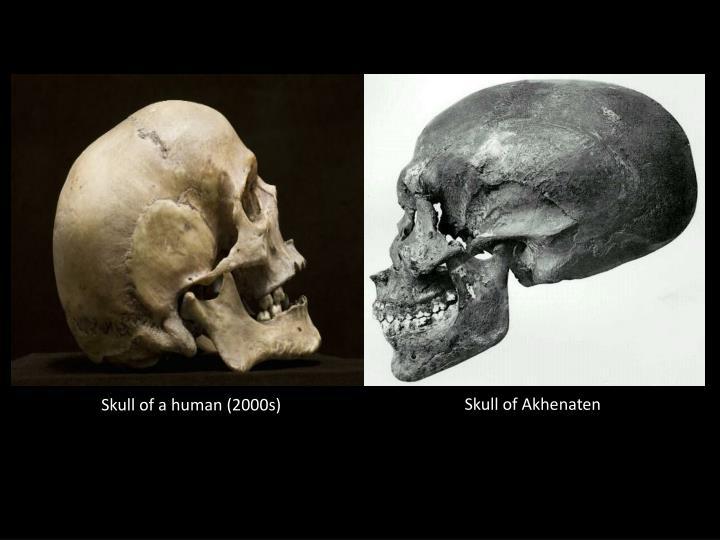 Skull of Akhenaten