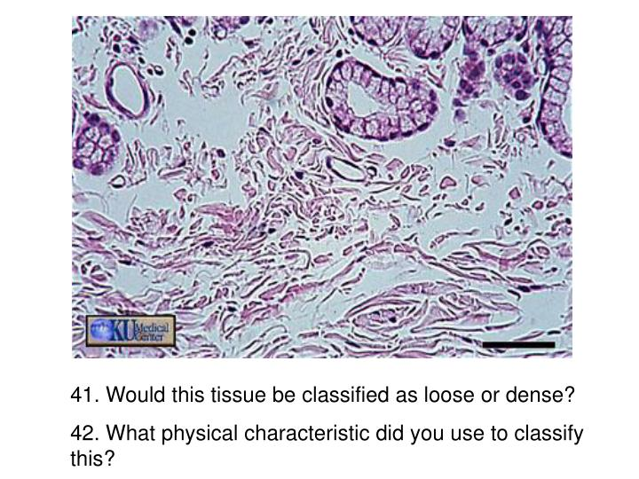 41. Would this tissue be classified as loose or dense?