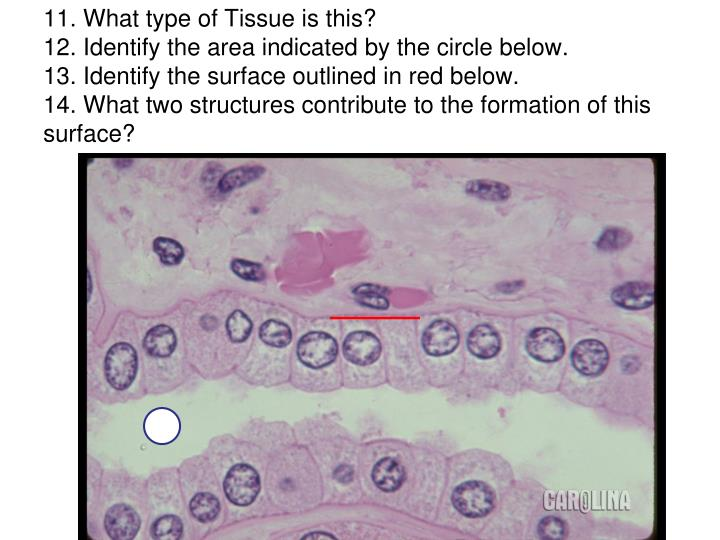 11. What type of Tissue is this?