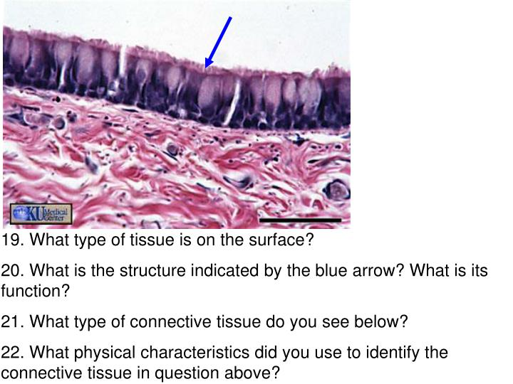 19. What type of tissue is on the surface?