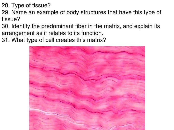 28. Type of tissue?