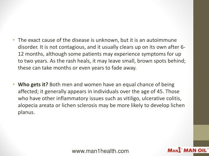 The exact cause of the disease is unknown, but it is an autoimmune disorder. It is not contagious, a...
