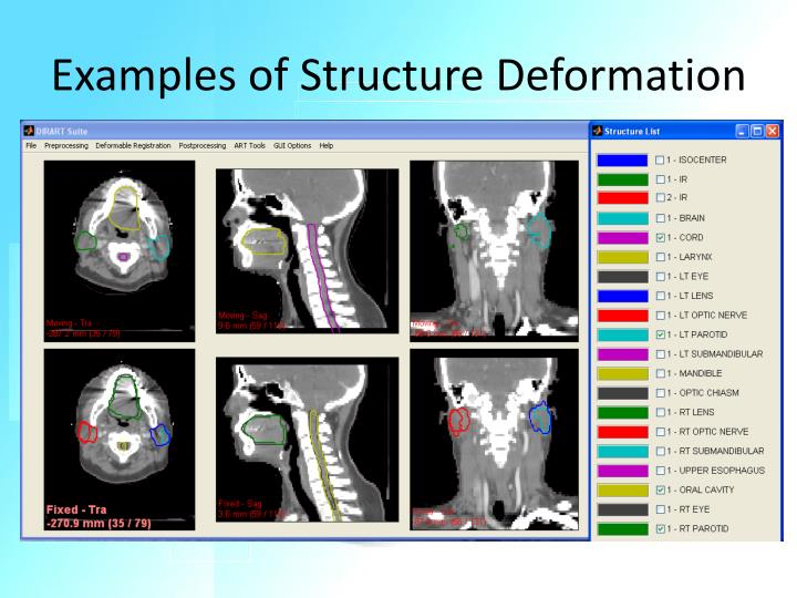 Examples of Structure Deformation