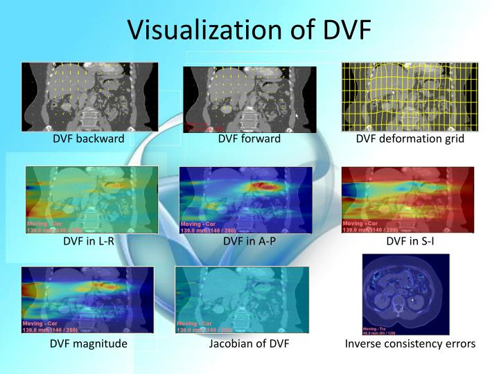 Visualization of DVF