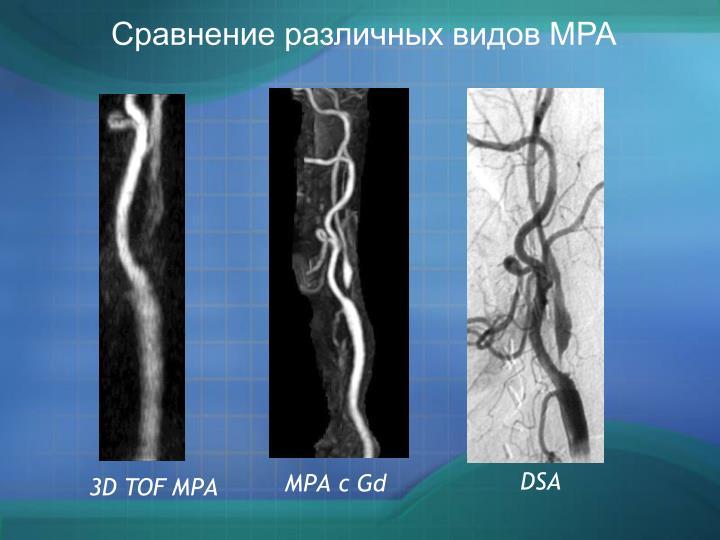 Сравнение различных видов МРА