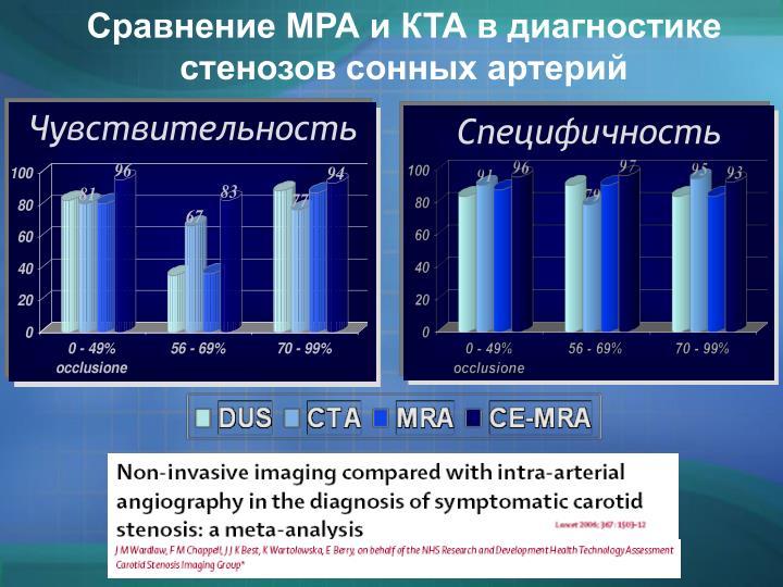 Сравнение МРА и КТА в диагностике стенозов сонных артерий