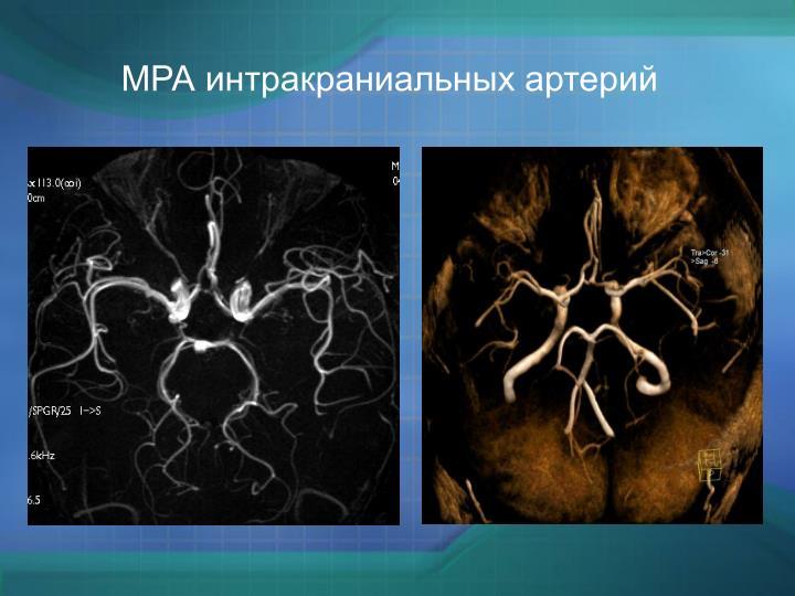 МРА интракраниальных артерий