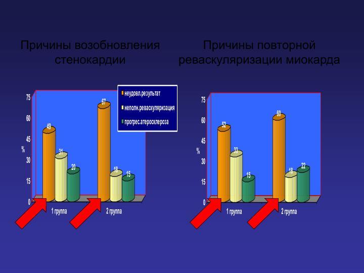 Причины возобновления стенокардии