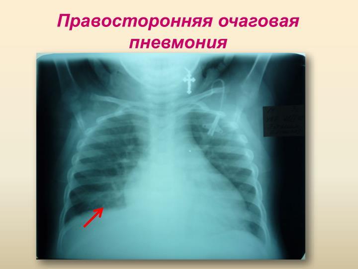 Правосторонняя очаговая пневмония