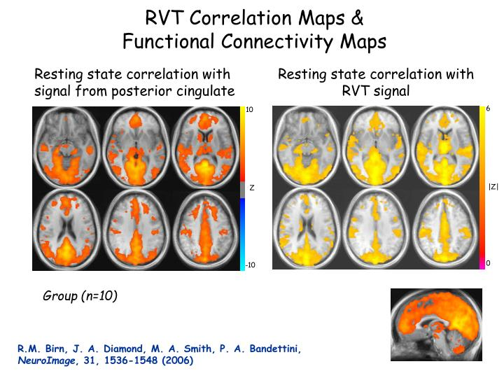 Resting state correlation with