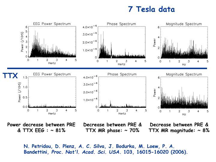 7 Tesla data