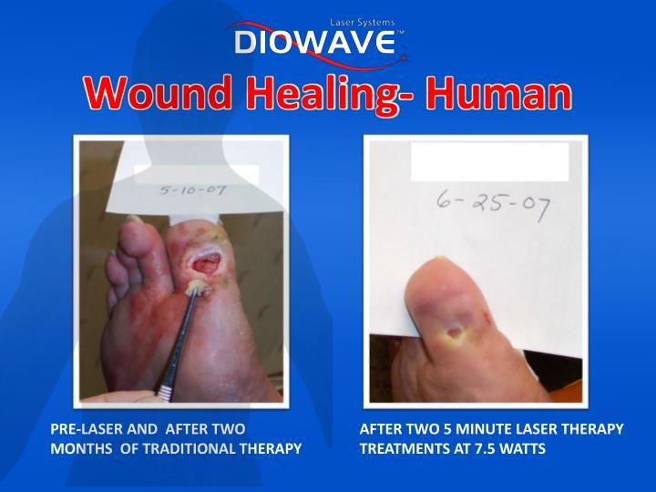 Wound Healing- Human