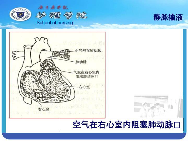 空气在右心室内阻塞肺动脉口