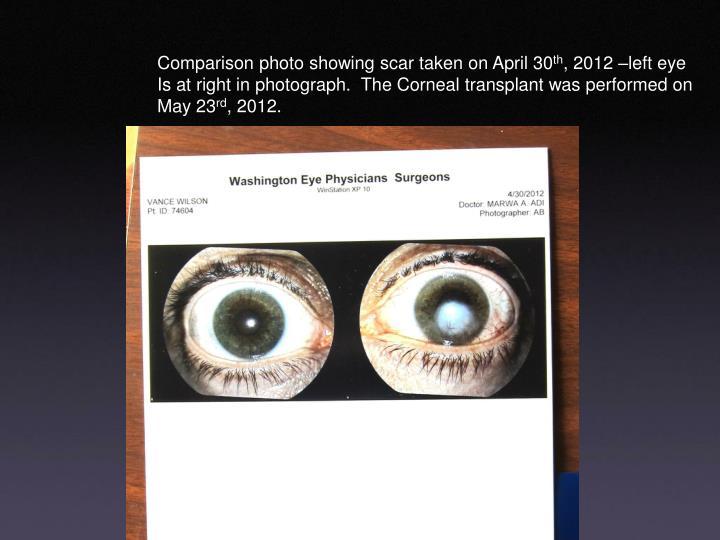 Comparison photo showing scar taken on April 30
