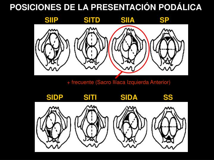 POSICIONES DE LA PRESENTACIÓN PODÁLICA