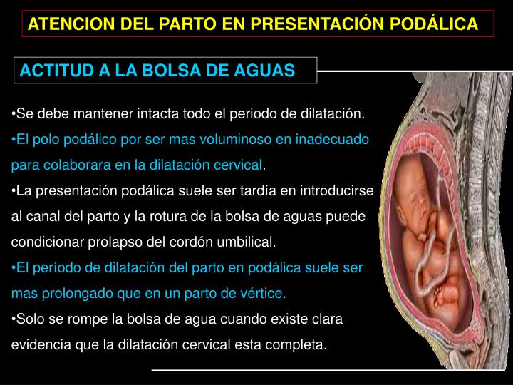 ATENCION DEL PARTO EN PRESENTACIÓN PODÁLICA