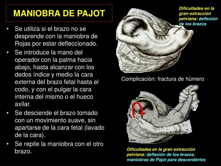 MANIOBRA DE PAJOT