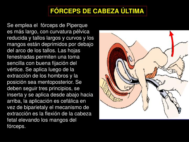 FÓRCEPS DE CABEZA ÚLTIMA
