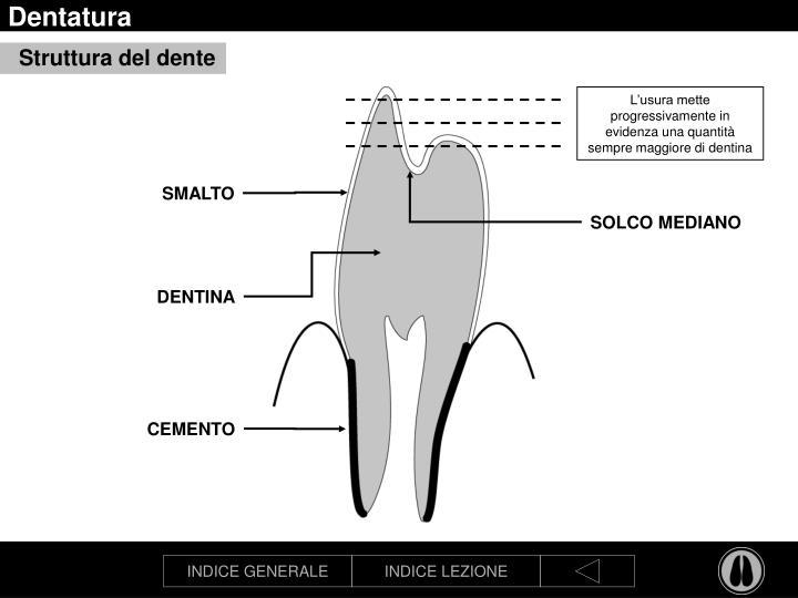 Dentatura