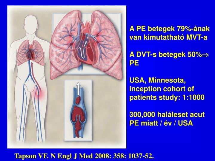 A PE betegek 79%-ának van kimutatható MVT-a