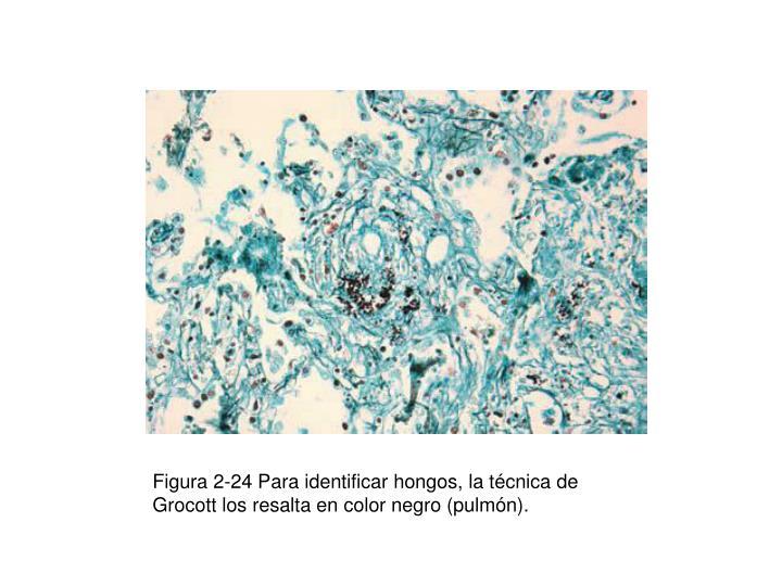 Figura 2-24 Para identificar hongos, la técnica de Grocott los resalta en color negro (pulmón).