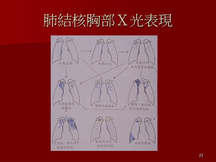 肺結核胸部X光表現