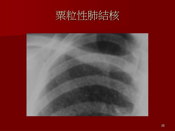粟粒性肺結核