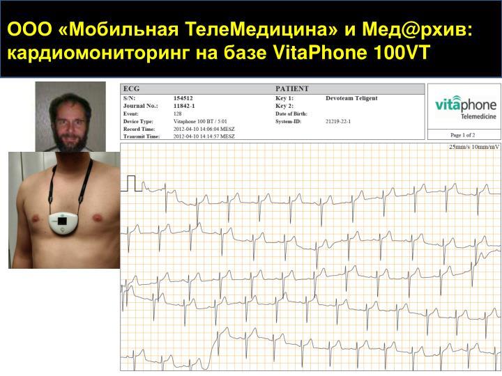 ООО «Мобильная ТелеМедицина» и Мед