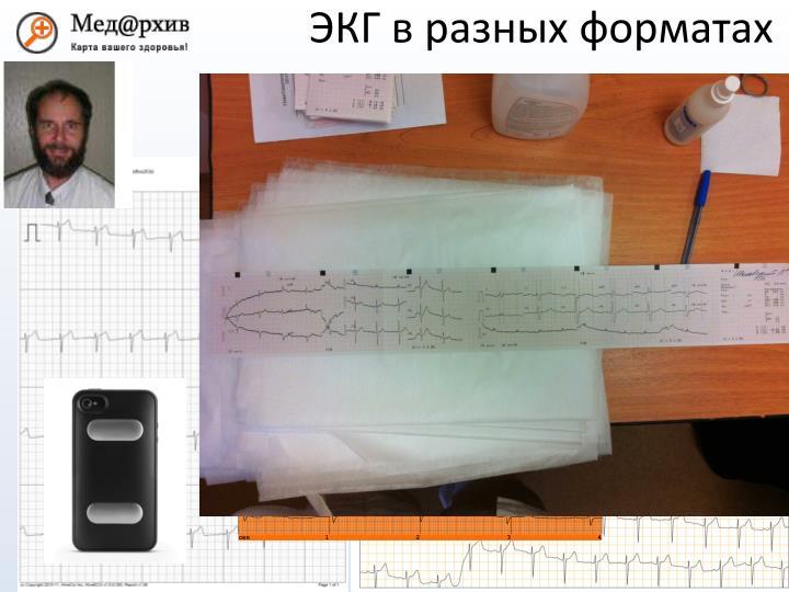 ЭКГ в разных форматах