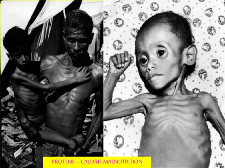 PROTENE – CALORIE MALNUTRITION