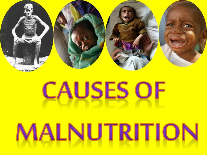 Causes of Malnutrition
