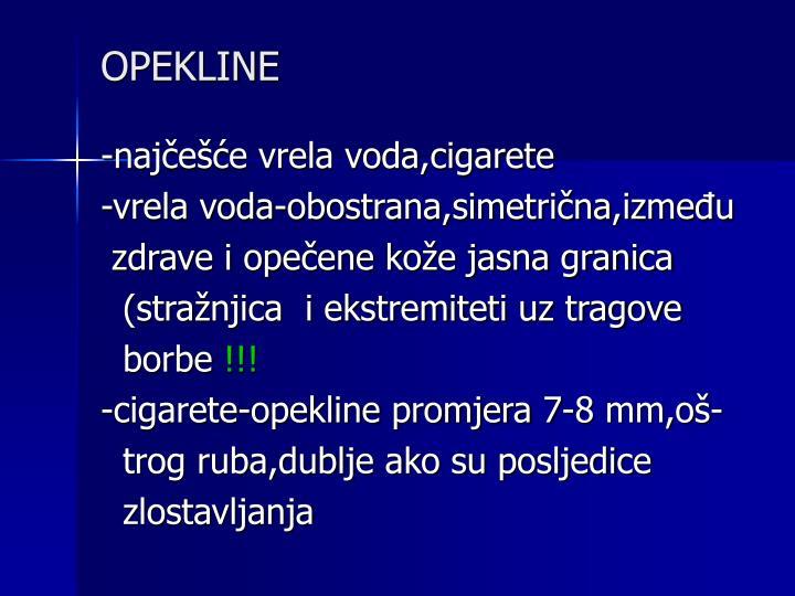 OPEKLINE