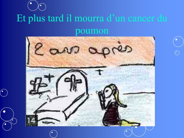 Et plus tard il mourra d'un cancer du poumon