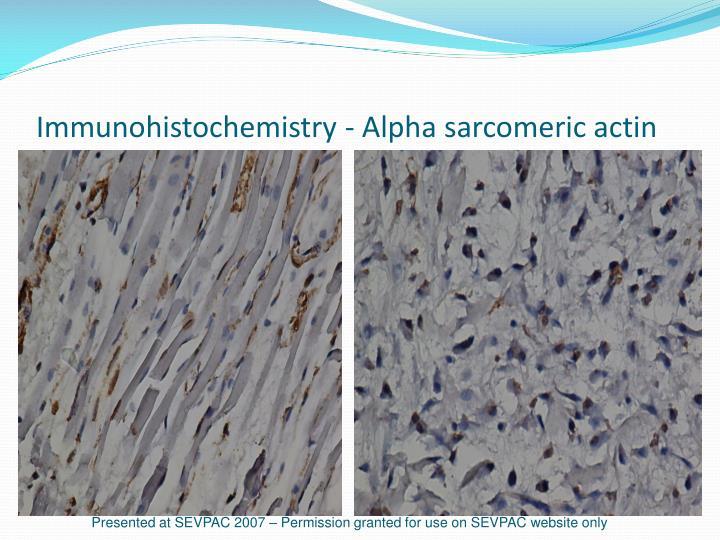 Immunohistochemistry - Alpha sarcomeric actin
