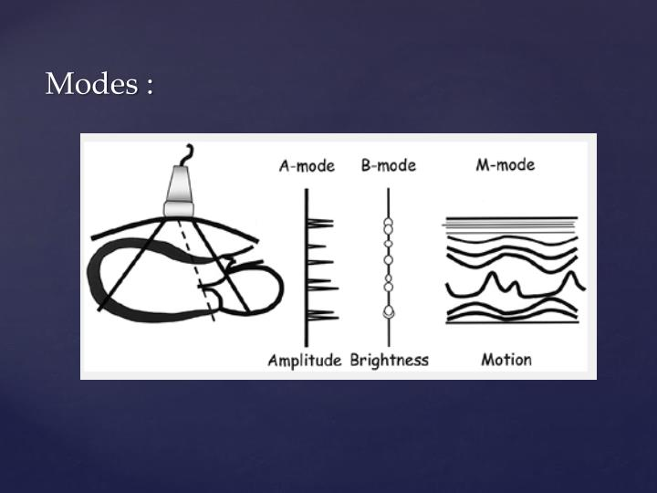 Modes :