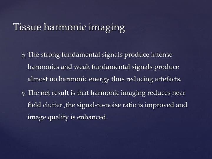 Tissue harmonic imaging